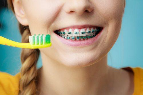 چگونه دندان های ارتودنسی شده را مسواک بزنیم؟