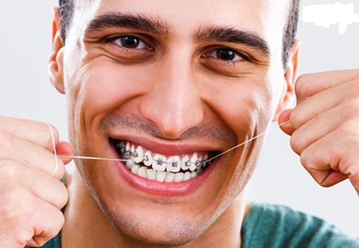 نخ دندان کشیدن صحیح در ارتودنسی