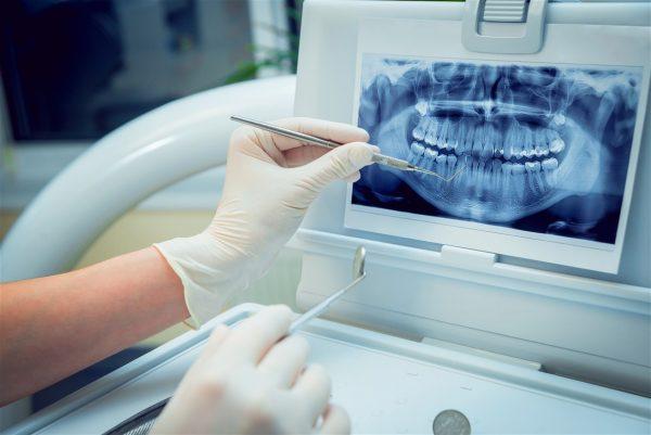 نقش اشعه ایکس در ارتودنسی و دندانپزشکی