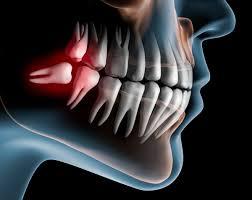 کشیدن دندان عقل و ارتباط آن با ارتودنسی