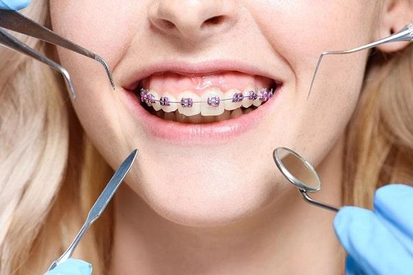 جلوگیری از پوسیدگی دندان حین ارتودنسی