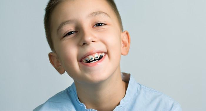 آشنایی با مشکلات ارتودنسی کودکان (8 مشکل رایج ارتودنسی)