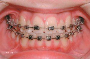 مراحل ارتودنسی دندان ثابت