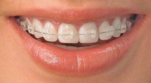 ارتودنسی دندان پیش