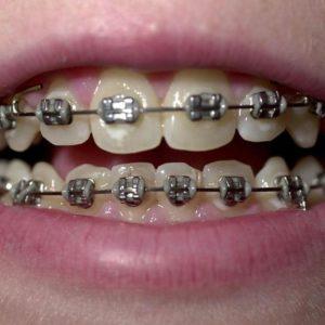 ارتودنسی چند دندان