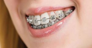 ارتودنسی دو دندان جلو، فاصله-بین-دندان