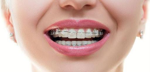 آیا ارتودنسی دندان قیمت یکسانی در کودکان و بزرگسالان دارد؟
