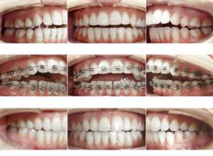 ارتودنسی و تغییر چهره-2