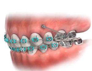 ارتودنسی دندان ایمپلنت شده2