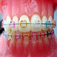 انتخاب بهترین رنگ ها در ارتودنسی دندان رنگی