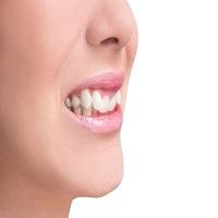 آشنایی کامل با نحوه انجام ارتودنسی دندان نیش