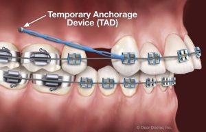 ارتودنسی دندان ایمپلنت شده3