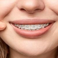 ارتودسی بدون کشیدن دندان