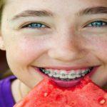 ارتودنسی دندان کودکان-1