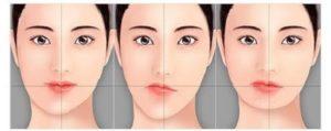 ارتودنسی همزمان با عمل بینی-2