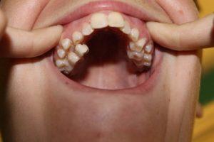 ارتودنسی دندان اضافی1