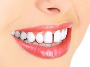 ارتودنسی فاصله دندان جلو2