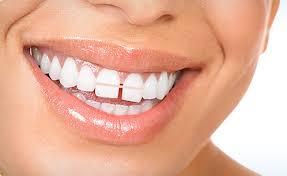 ارتودنسی فاصله دندان جلو3